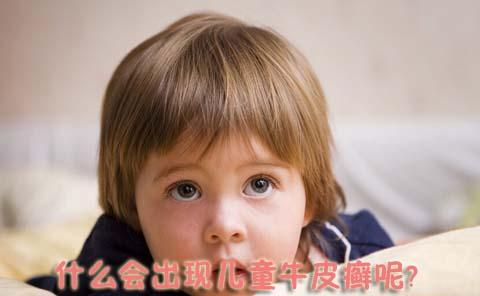 是什么原因引起儿童牛皮癣发病